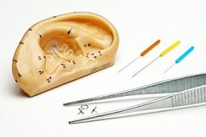 Agujas de auriculopuntura, chinchetas y pinzas con una oreja molde
