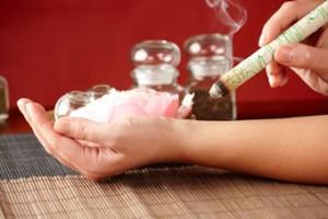 Medicina Tradicional china: Puro de moxibustión calentando un punto de acupuntura del brazo